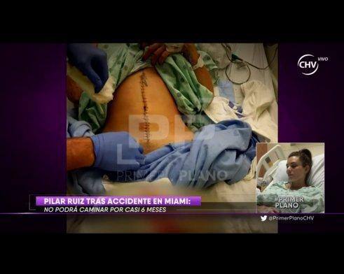 [Fotos] Primer Plano exhibió las cicatrices de Pilar Ruiz ... Megan Fox 13