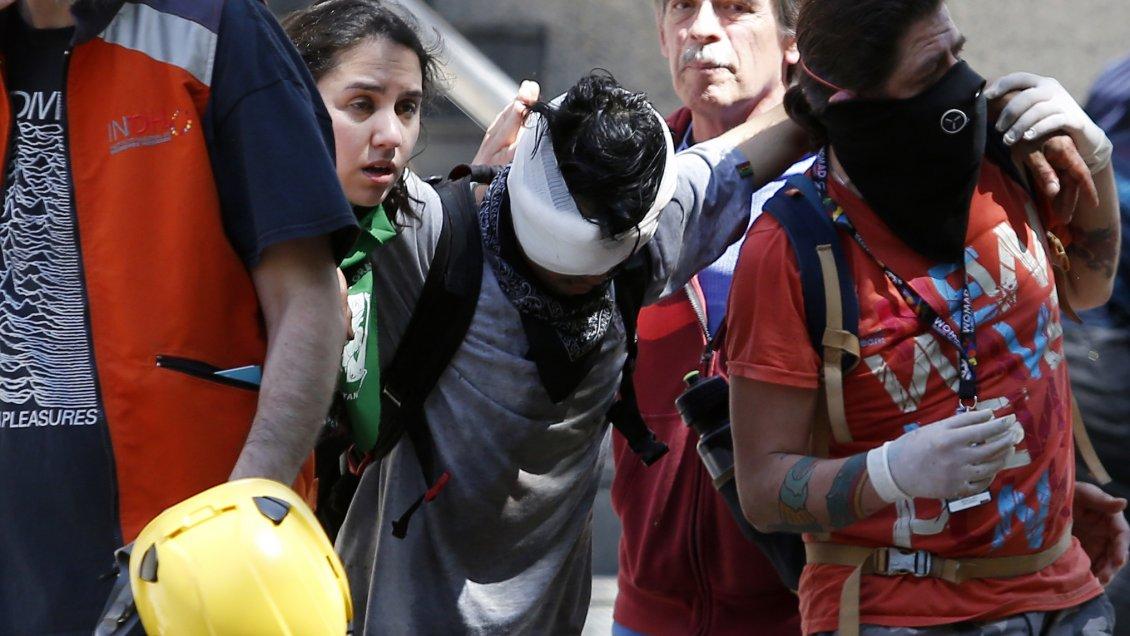 Hospital del Salvador registra 280 casos de trauma ocular severo en tres meses de protestas