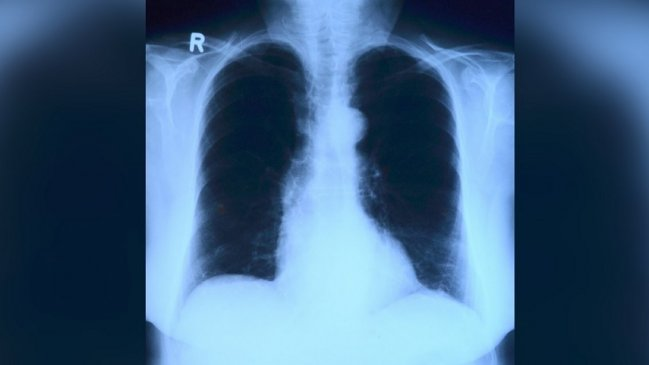 Estudio PUCV demostró que rayos X más inteligencia artificial pueden diagnosticar el Covid